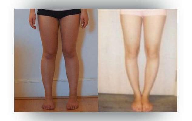 Ako Zamaskovať Krivé Nohy